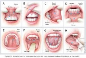 Sri Lanka's First Int'l Conference on Oral Cancer begins tomorrow
